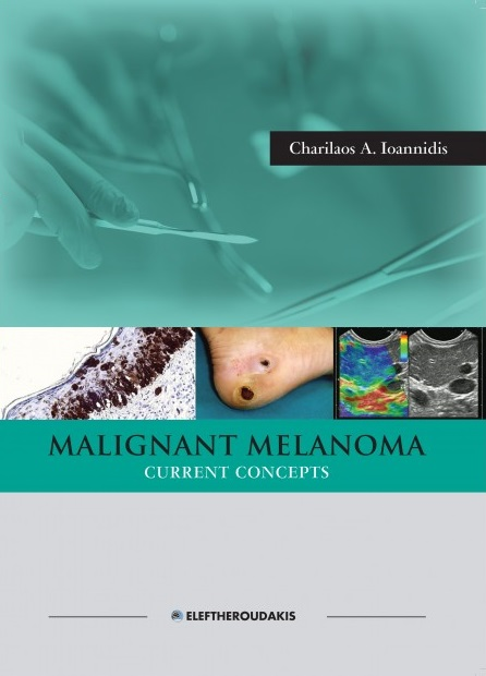 Malignant Melanoma Current Concepts